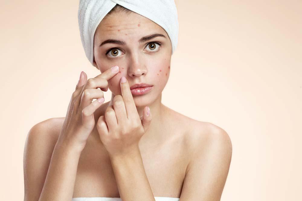 Acne – Symptome und Verlaufsformen